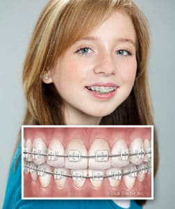 girl-with-ceramic-braces Beckstrom Orthodontics