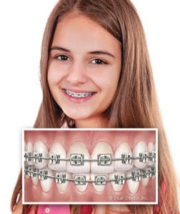 girl-with-metal-braces at Beckstrom Orthodontics in Troy Vandalia OH
